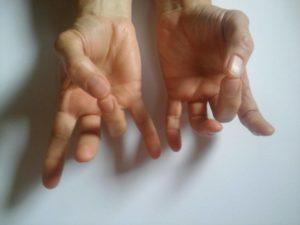 fájdalom az ujjak ízületeiben feszítés után hogyan lehet segíteni az ujjgyulladás esetén